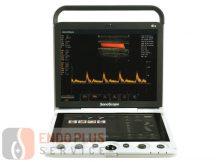 SONOSCAPE S9 - Hordozható ultrahangkészülék